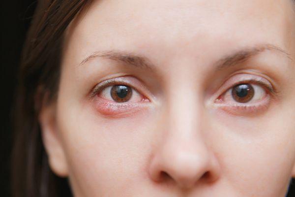 oči lahko poleti pogosto doleti ječmen